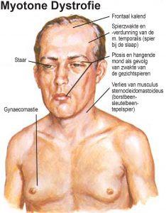 Spierzwakte_Steinert-300x290 Ziekte van Steinert (myotone dystrofie)