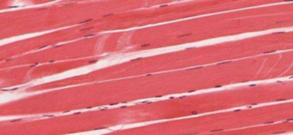 Skeletal-muscle-tissue.-Credit-University-of-Michigan-Medical-School-1024x472 Onderzoekers gebruiken 3-D beelden om diagnose spierziekten te verbeteren