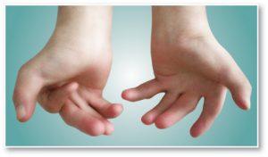 Handen_AMC_SpierziektenVl-300x176 Arthrogryposis multiplex congenital (AMC)